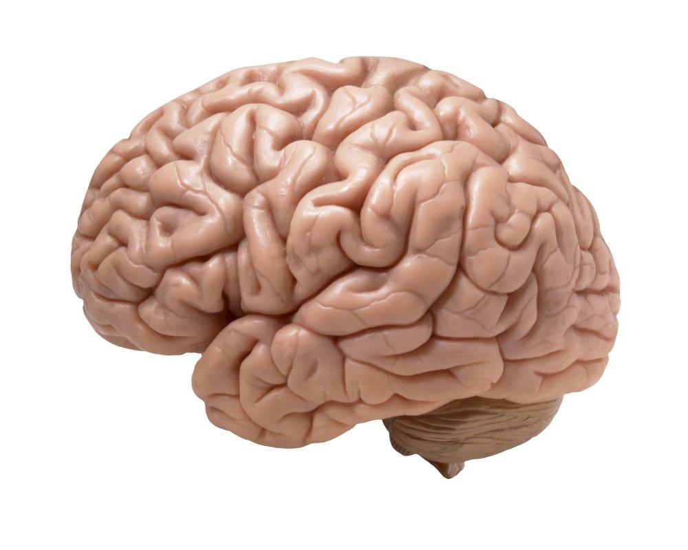 Get a Brain Scan