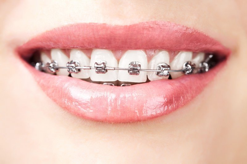 teeth with braces - Idaho Falls orthodontic treatment