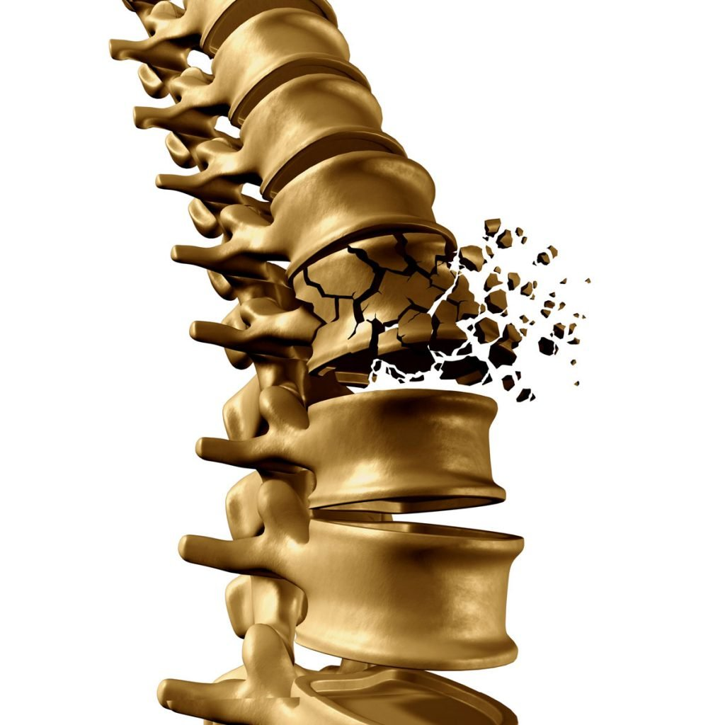 Compression Fractures Of The Spine